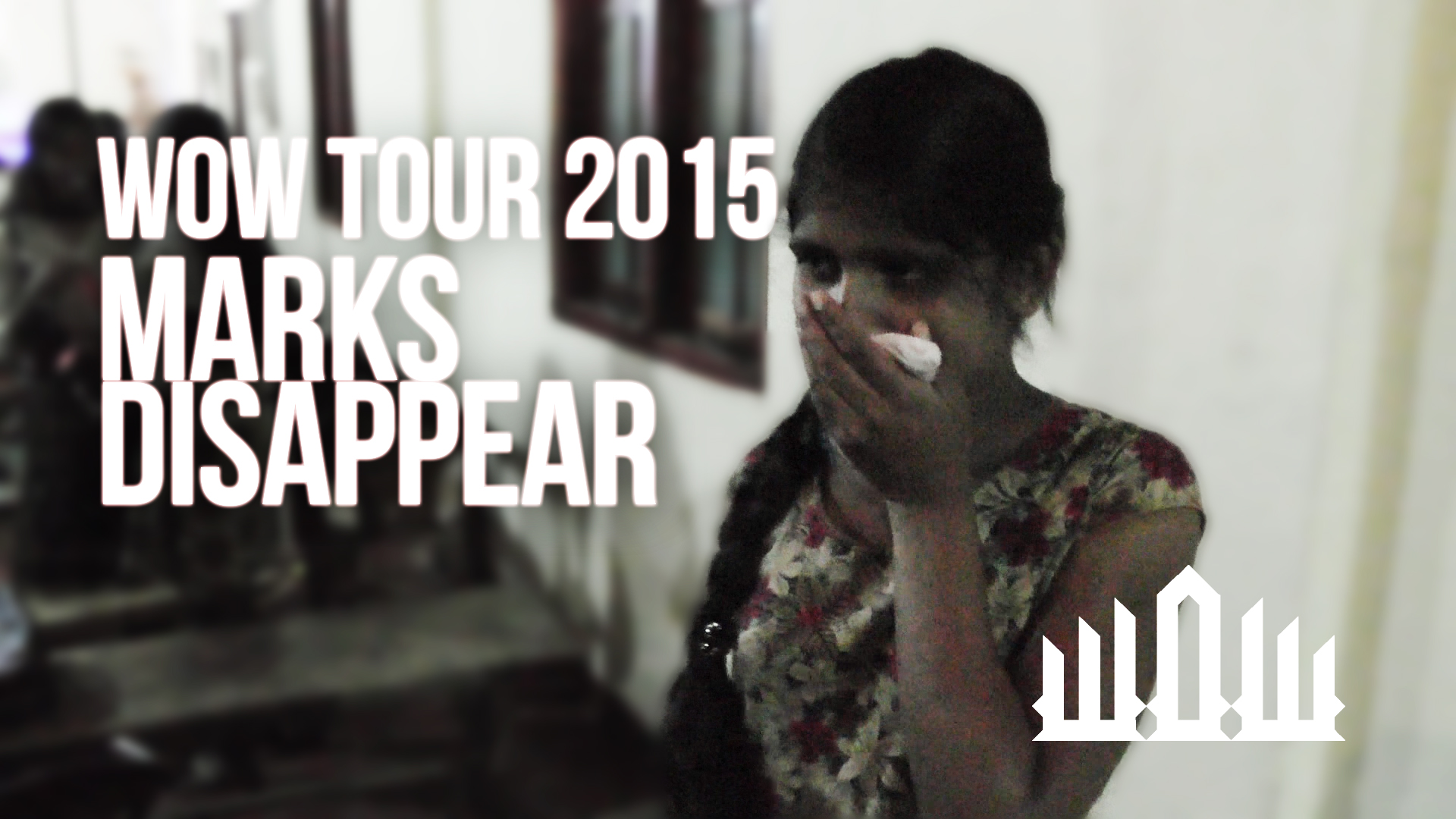 BIRTHMARKS DISAPPEAR – WOW TOUR 2015 – KIRBY DE LANEROLLE